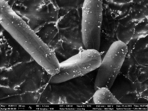 E-coli dotted with silver nanoparticles. Photo: ZEISS Microscopy